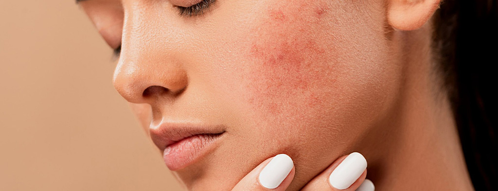 Person with Acne on Cheek